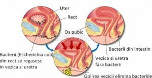 Cum să scapi de infecţia urinară cu acest suc miraculos