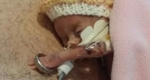 Fiica lor s-a născut prematur şi le-au spus că va muri în 21 de zile. Prima fotografie, sfâşietoare