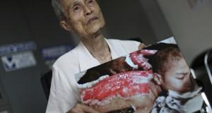 Imagini sfâșietoare. Cicatricile lăsate pe trupul unui bătrân de explozia de la Nagasaki