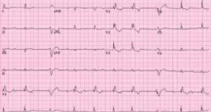 Super veste! Brotac Medical Center are grijă de inima ta! Îți oferă gratuit electrocardiograma!