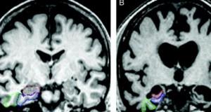 Descoperire surprinzătoare. Ce au văzut medicii în creierul unui bolnav de Alzheimer