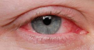 Cinci semne că ar trebui să mergi la un consult oftalmologic