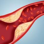 Cum să scazi nivelul colesterolului cu 10%, pe loc