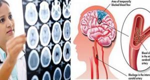 Semne care îţi spun că durerea de cap pe care o ai poate fi fatală