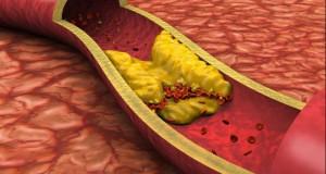Alimentul care poate scădea colesterolul, dar pe care cu siguranță nu-l mănânci