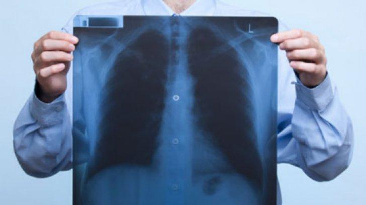 Edemul pulmonar - simptome, diagnostic şi tratament