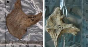 Descoperire macabră a arheologilor: celţii foloseau capete umane drept trofee